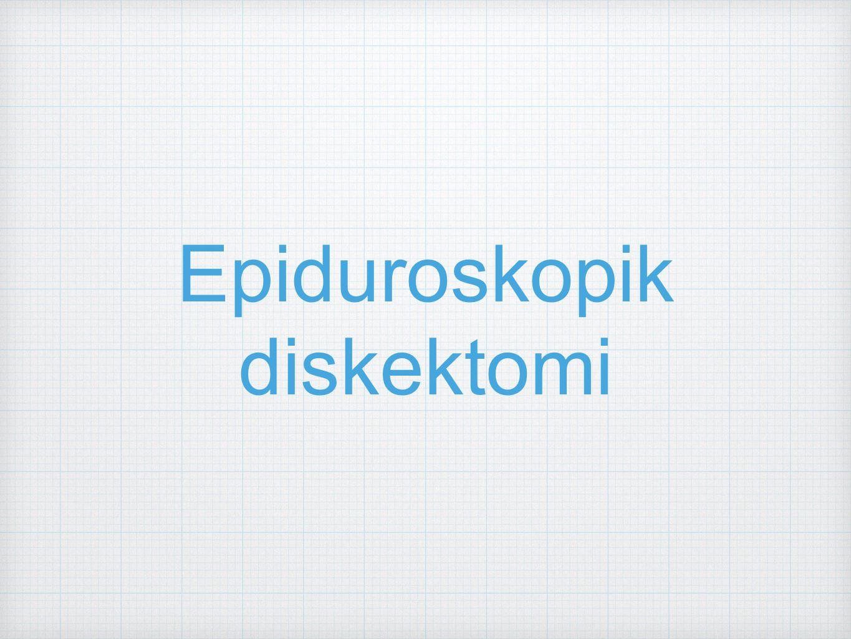 Epiduroskopik diskektomi