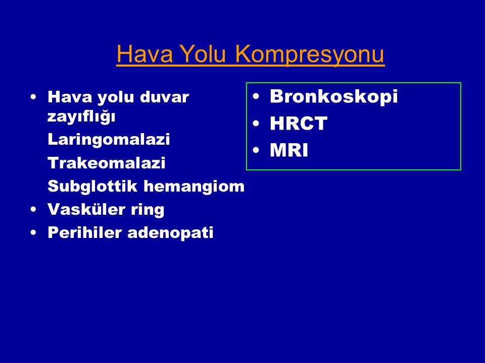 Hava Yolu Kompresyonu Bronkoskopi HRCT MRI Hava yolu duvar zayıflığı Laringomalazi Trakeomalazi Subglottik hemangiom Vasküler ring Perihiler adenopati
