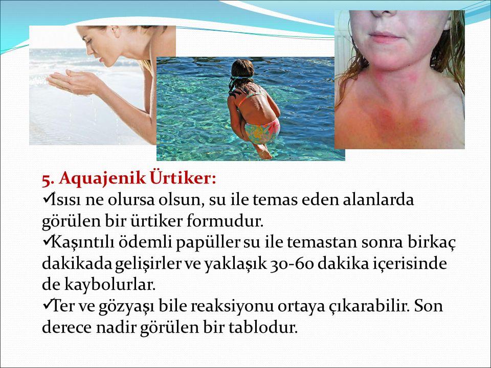 5. Aquajenik Ürtiker: Isısı ne olursa olsun, su ile temas eden alanlarda görülen bir ürtiker formudur. Kaşıntılı ödemli papüller su ile temastan sonra