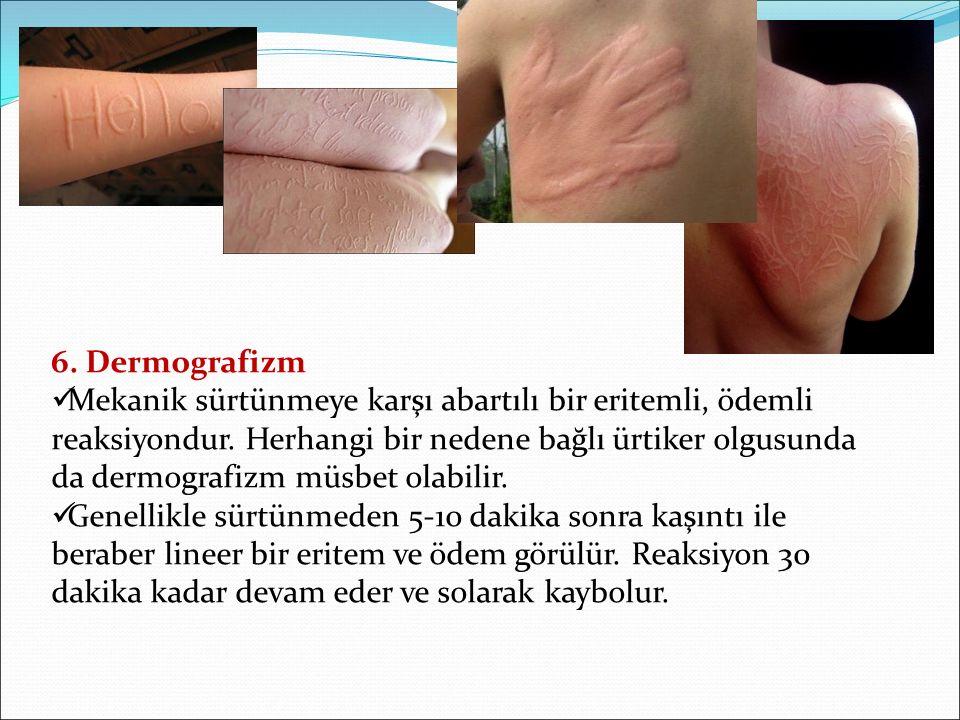 6. Dermografizm Mekanik sürtünmeye karşı abartılı bir eritemli, ödemli reaksiyondur. Herhangi bir nedene bağlı ürtiker olgusunda da dermografizm müsbe