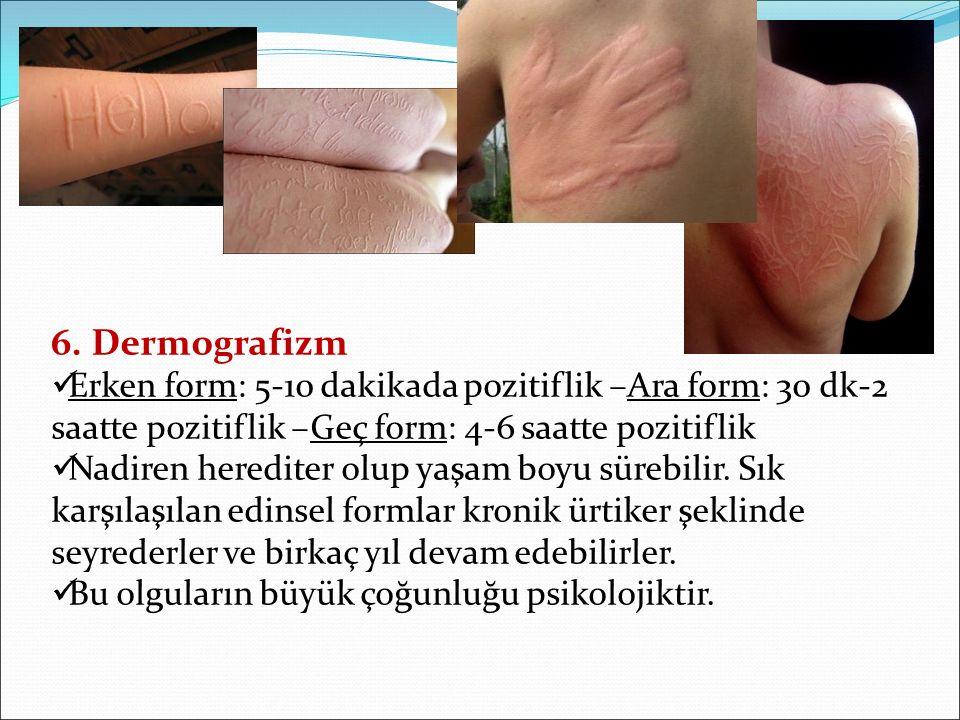 6. Dermografizm Erken form: 5-10 dakikada pozitiflik –Ara form: 30 dk-2 saatte pozitiflik –Geç form: 4-6 saatte pozitiflik Nadiren herediter olup yaşa