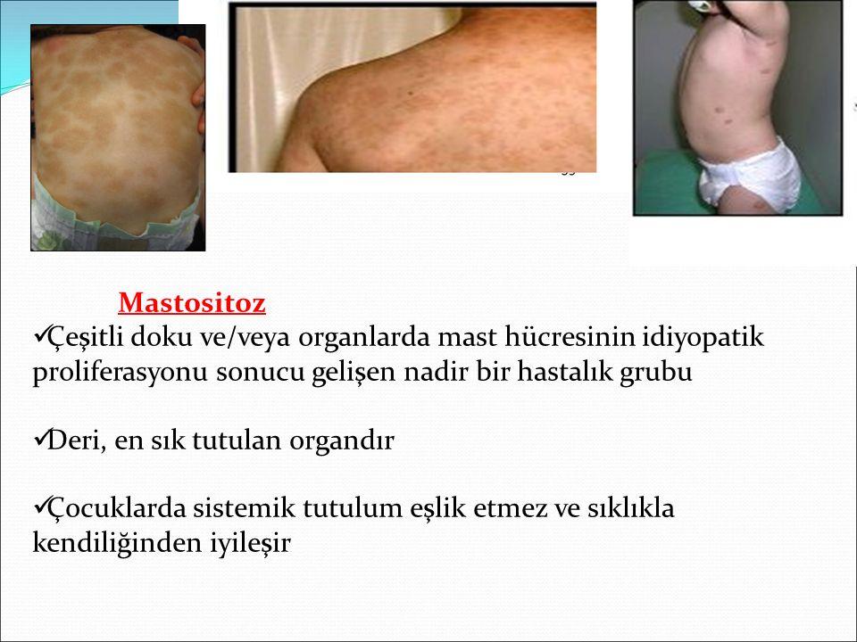 Mastositoz Çeşitli doku ve/veya organlarda mast hücresinin idiyopatik proliferasyonu sonucu gelişen nadir bir hastalık grubu Deri, en sık tutulan organdır Çocuklarda sistemik tutulum eşlik etmez ve sıklıkla kendiliğinden iyileşir
