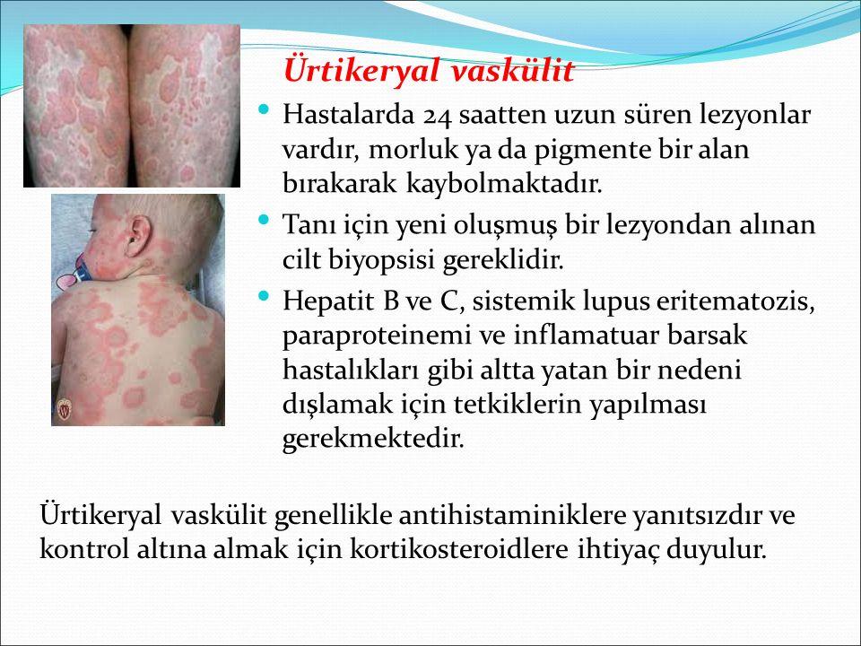 Ürtikeryal vaskülit Hastalarda 24 saatten uzun süren lezyonlar vardır, morluk ya da pigmente bir alan bırakarak kaybolmaktadır. Tanı için yeni oluşmuş