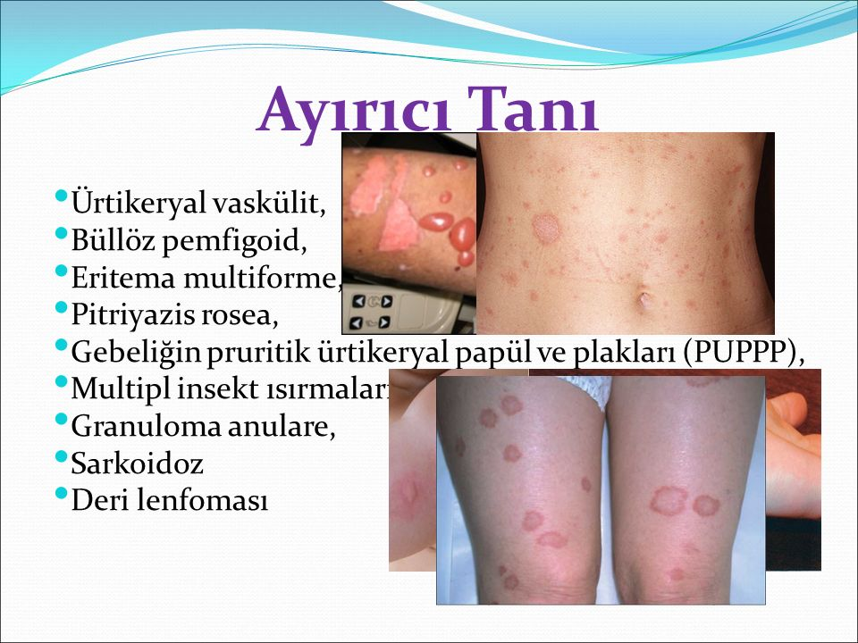 Ürtikeryal vaskülit, Büllöz pemfigoid, Eritema multiforme, Pitriyazis rosea, Gebeliğin pruritik ürtikeryal papül ve plakları (PUPPP), Multipl insekt ı