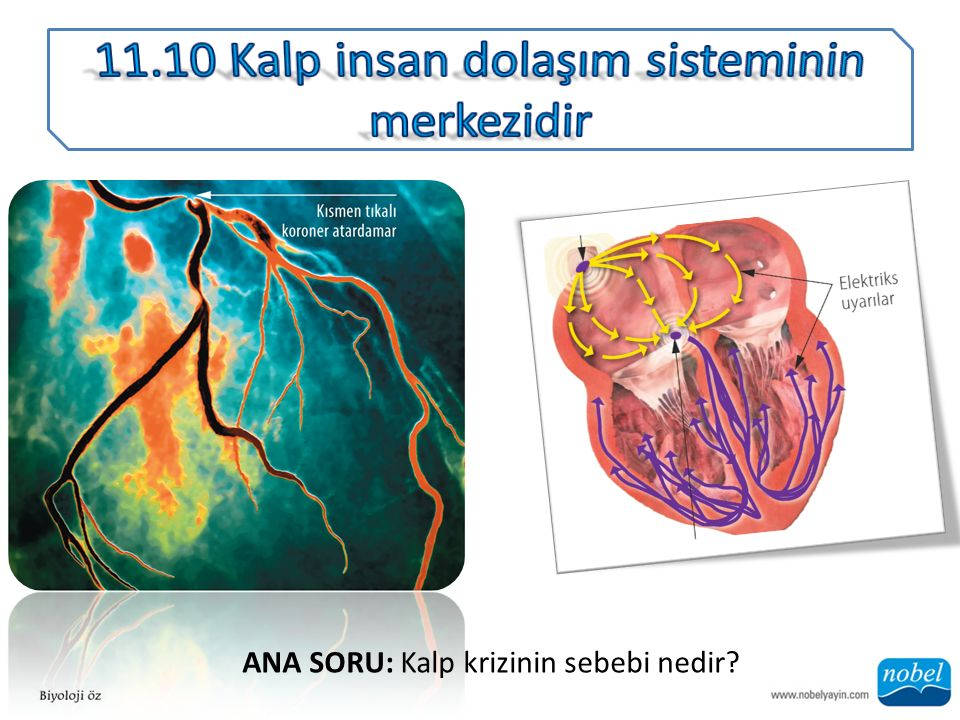 ANA SORU: Kalp krizinin sebebi nedir