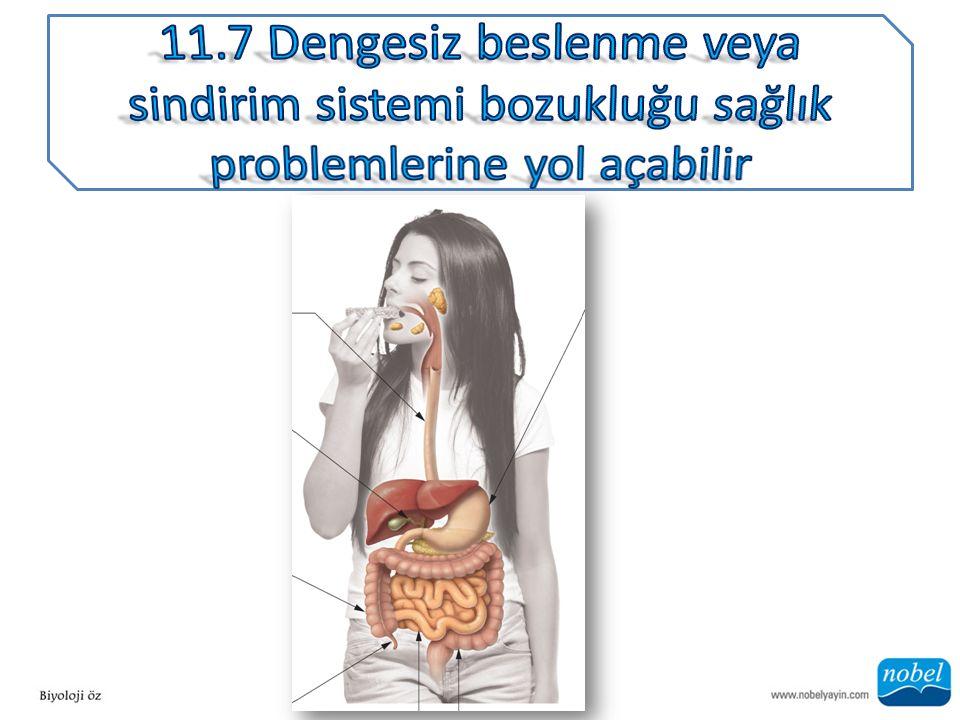 ANA SORU: Bir insanın hem obez olup hem de beslenme bozukluğuna sahip olması mümkün müdür?