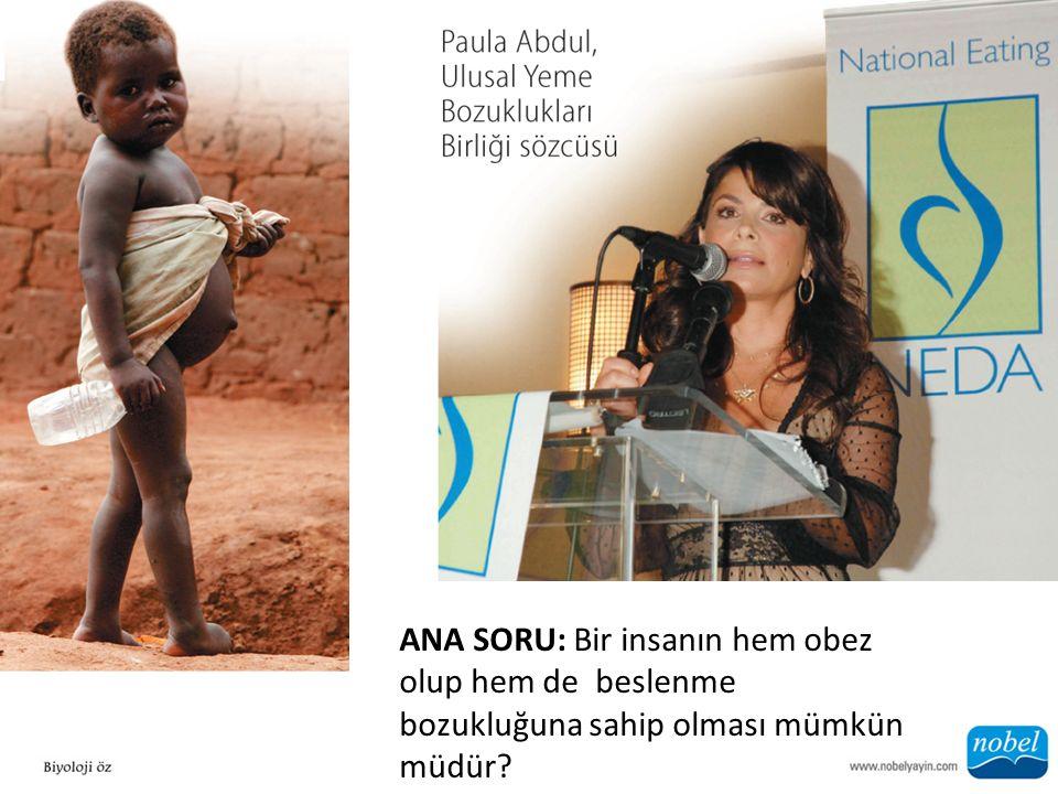 ANA SORU: Bir insanın hem obez olup hem de beslenme bozukluğuna sahip olması mümkün müdür