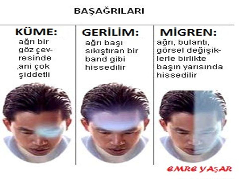Tüm baş ağrıları arasında en fazla gerilim tipi ya da migren tipi baş ağrıları görülür.