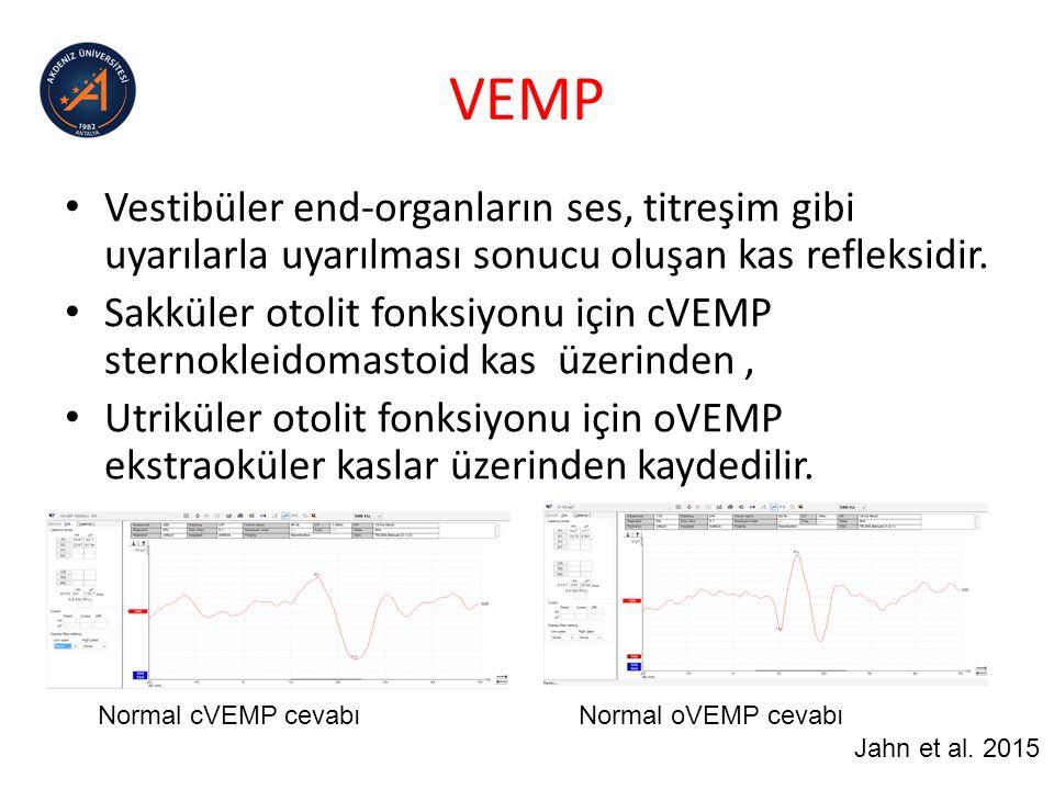 VEMP Vestibüler end-organların ses, titreşim gibi uyarılarla uyarılması sonucu oluşan kas refleksidir.