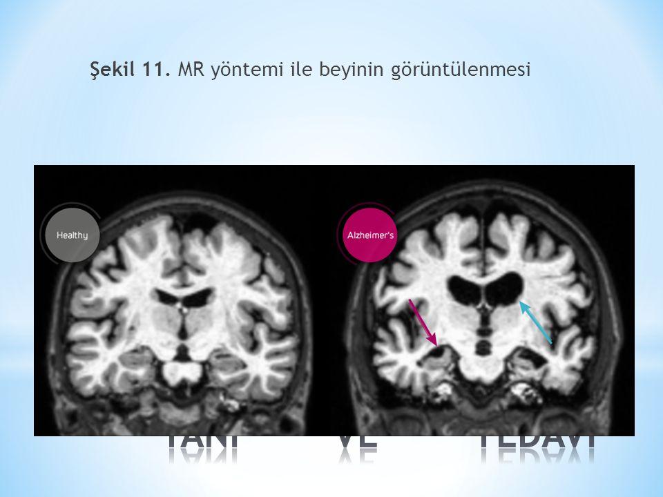Şekil 11. MR yöntemi ile beyinin görüntülenmesi