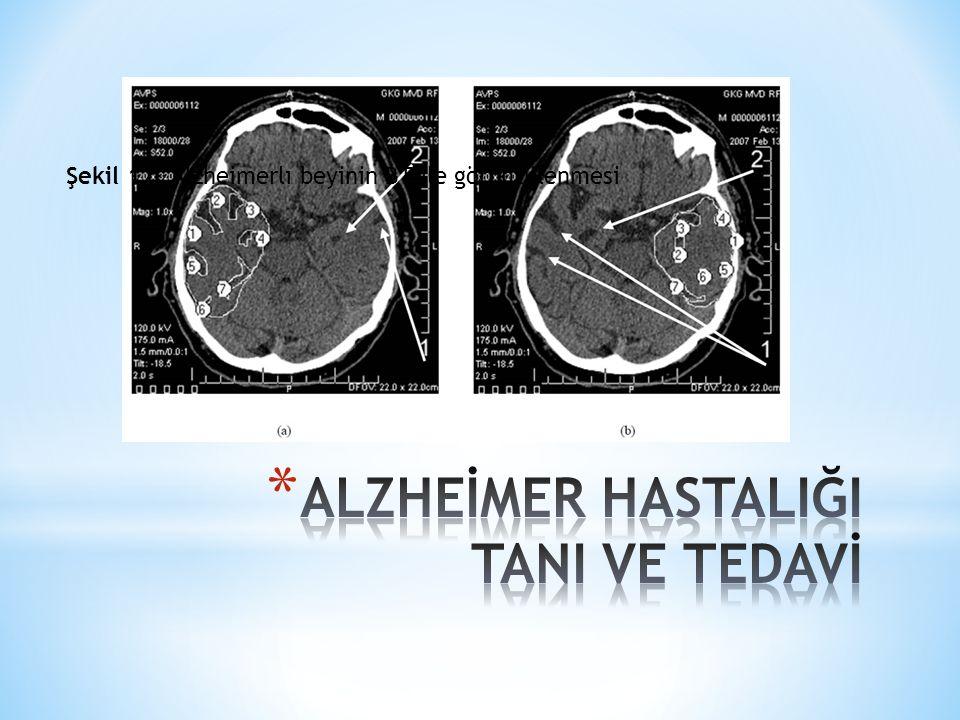 Şekil 12. Alzheimerlı beyinin BT ile görüntülenmesi