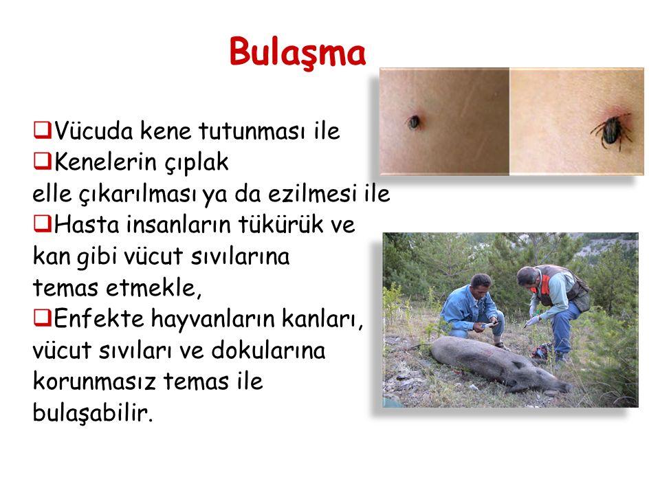  Vücuda kene tutunması ile  Kenelerin çıplak elle çıkarılması ya da ezilmesi ile  Hasta insanların tükürük ve kan gibi vücut sıvılarına temas etmek