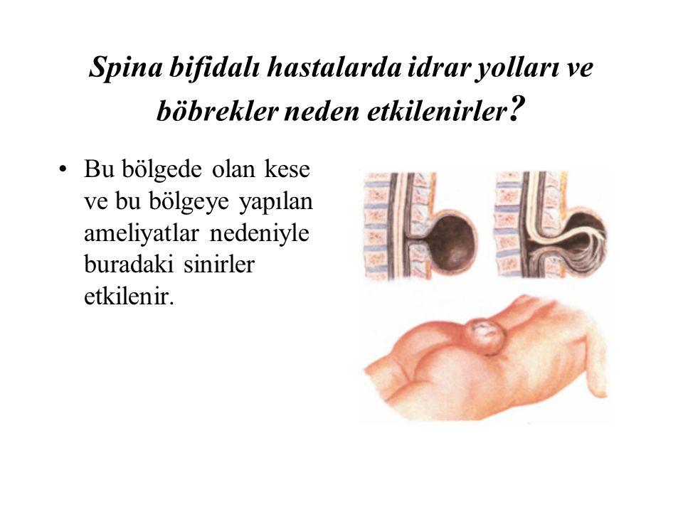 Spina bifidalı hastalarda idrar yolları ve böbrekler neden etkilenirler ? Bu bölgede olan kese ve bu bölgeye yapılan ameliyatlar nedeniyle buradaki si