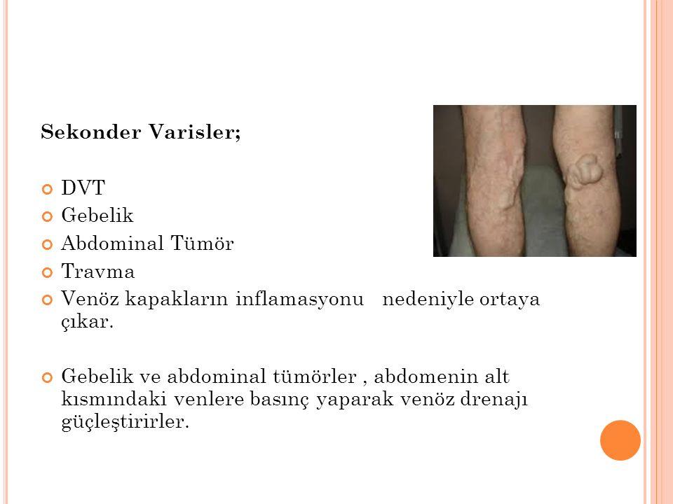 Sekonder Varisler; DVT Gebelik Abdominal Tümör Travma Venöz kapakların inflamasyonu nedeniyle ortaya çıkar.