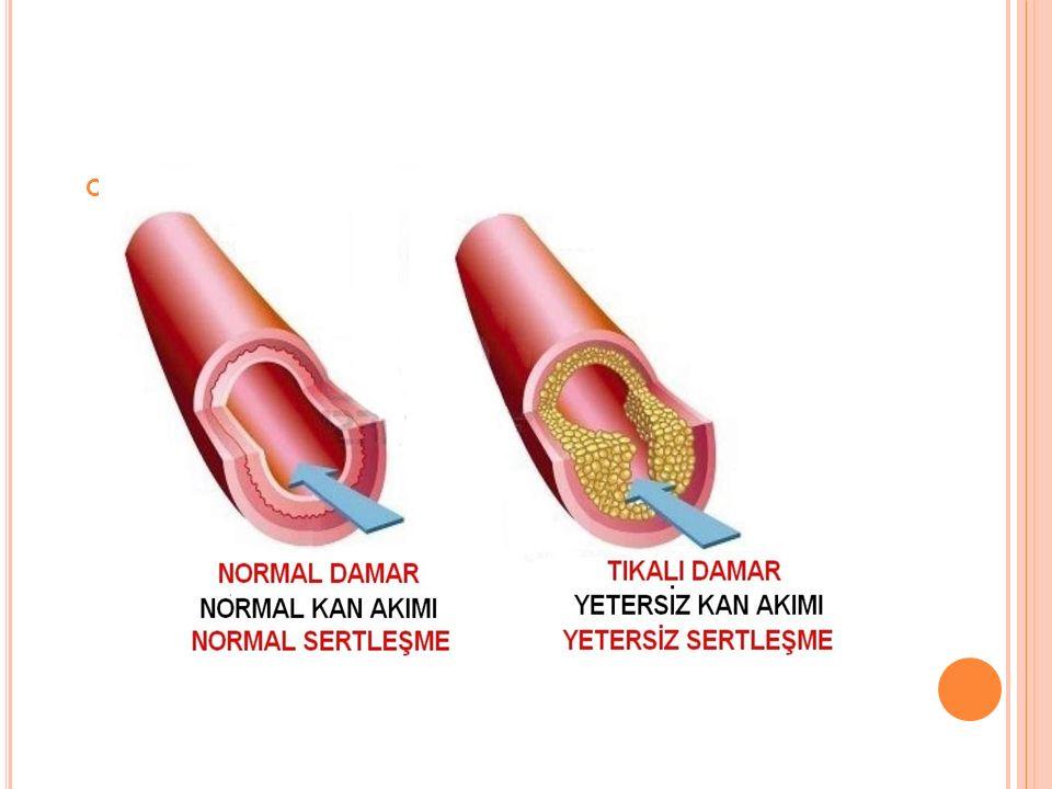Venöz duvar travması(zedelenmesi); IV enjeksiyonlar Buerger hastalığı Kırıklar Radyoopak maddeler Bazı kimyasal ajanlar