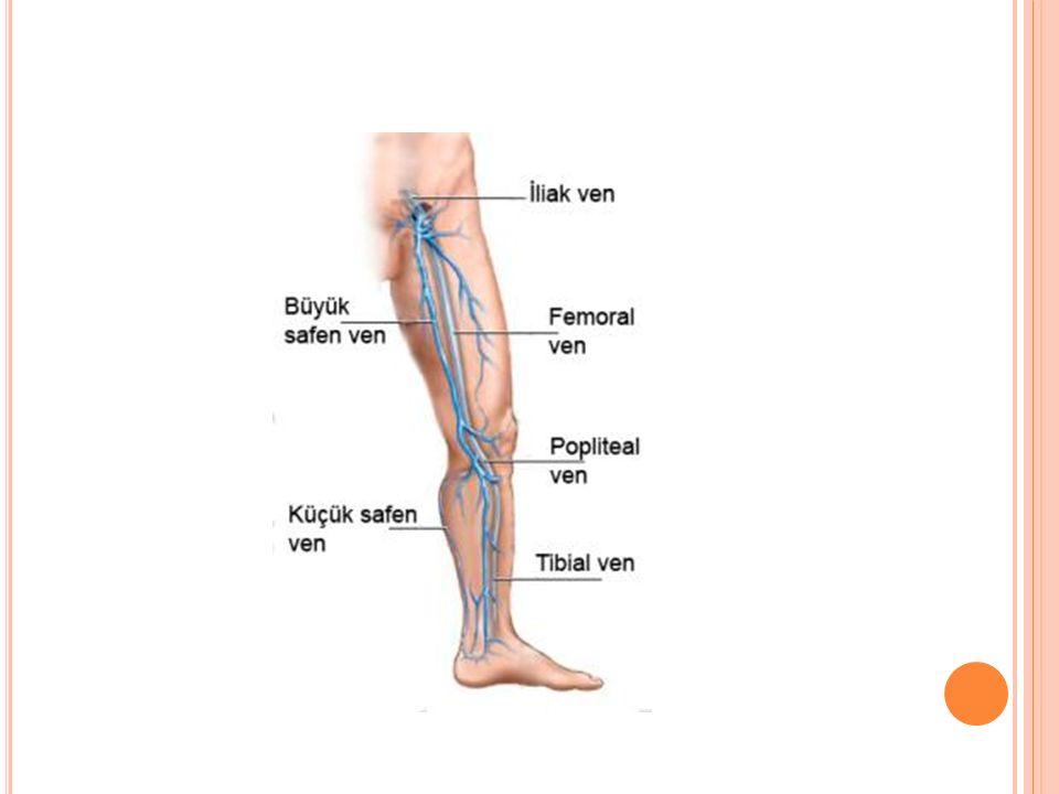 Varis, siklıkla bedenin alt kısımlarında bulunan venlerdeki kapakların yetersizliği sonucu venlerin anormal şekilde kıvrılması ve genişlemesidir.