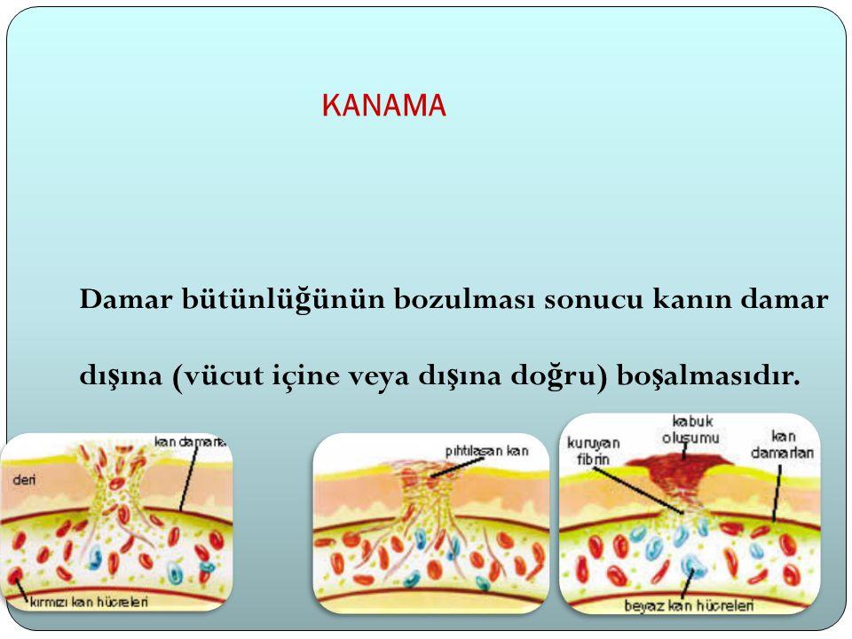 KANAMA Damar bütünlü ğ ünün bozulması sonucu kanın damar dı ş ına (vücut içine veya dı ş ına do ğ ru) bo ş almasıdır.