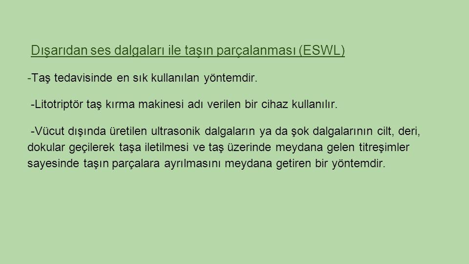 Dışarıdan ses dalgaları ile taşın parçalanması (ESWL) -Taş tedavisinde en sık kullanılan yöntemdir.