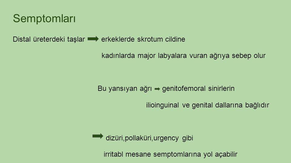 Semptomları Distal üreterdeki taşlar erkeklerde skrotum cildine kadınlarda major labyalara vuran ağrıya sebep olur Bu yansıyan ağrı genitofemoral sinirlerin ilioinguinal ve genital dallarına bağlıdır dizüri,pollaküri,urgency gibi irritabl mesane semptomlarına yol açabilir