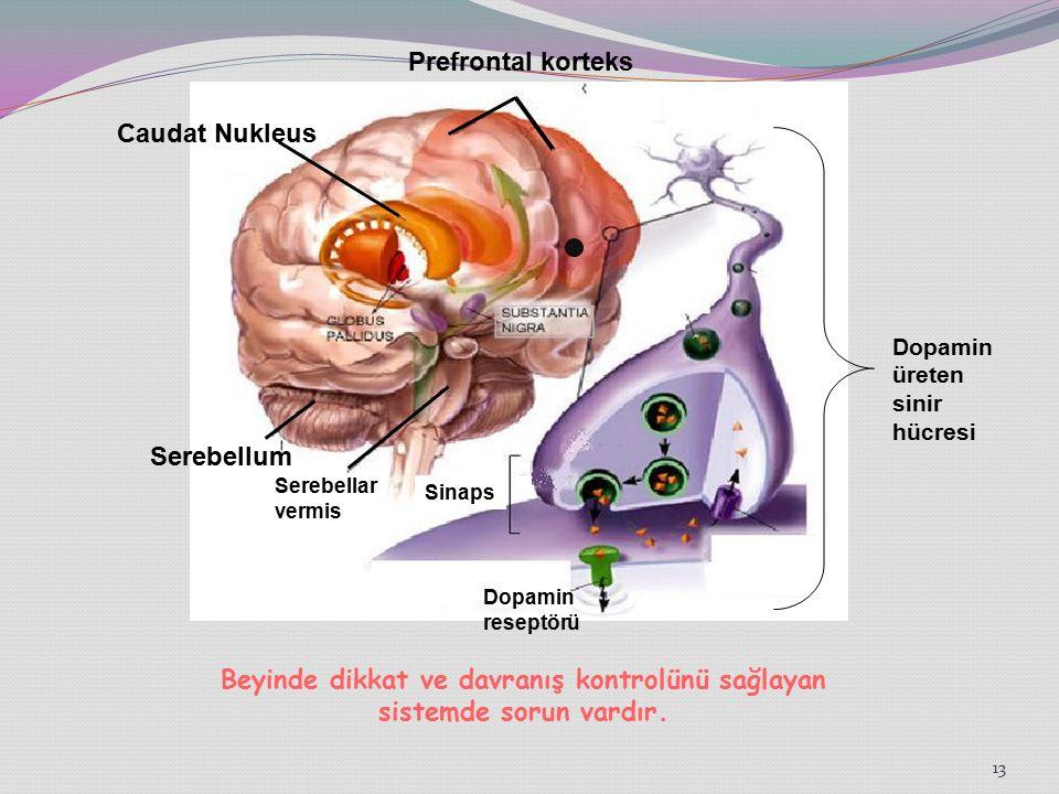 13 Caudat Nukleus Prefrontal korteks Serebellum Dopamin üreten sinir hücresi Dopamin reseptörü Sinaps Serebellar vermis Beyinde dikkat ve davranış kontrolünü sağlayan sistemde sorun vardır.