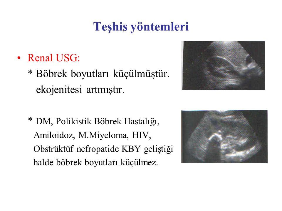 Teşhis yöntemleri Renal USG: * Böbrek boyutları küçülmüştür. ekojenitesi artmıştır. * DM, Polikistik Böbrek Hastalığı, Amiloidoz, M.Miyeloma, HIV, Obs