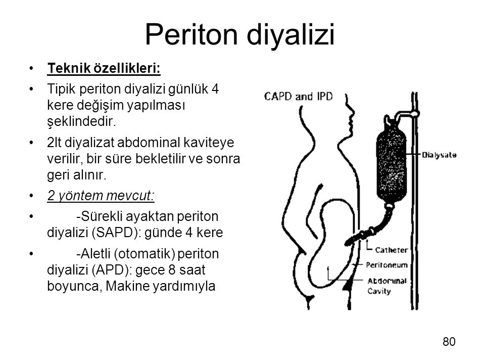 Periton diyalizi Teknik özellikleri: Tipik periton diyalizi günlük 4 kere değişim yapılması şeklindedir. 2lt diyalizat abdominal kaviteye verilir, bir