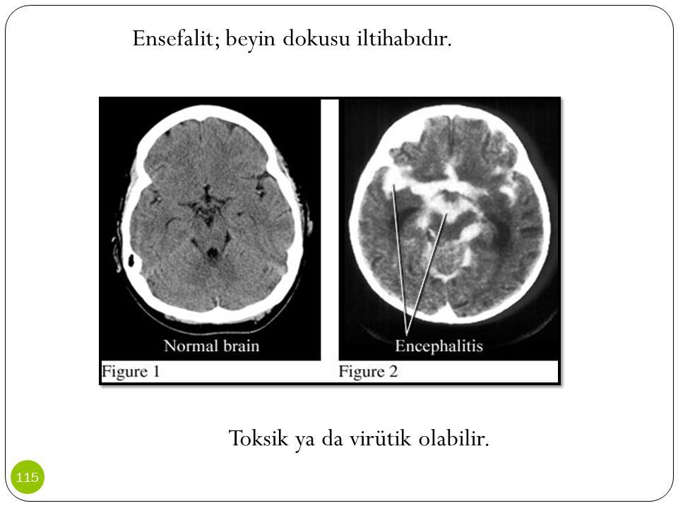Ensefalit; beyin dokusu iltihabıdır. Toksik ya da virütik olabilir. 115