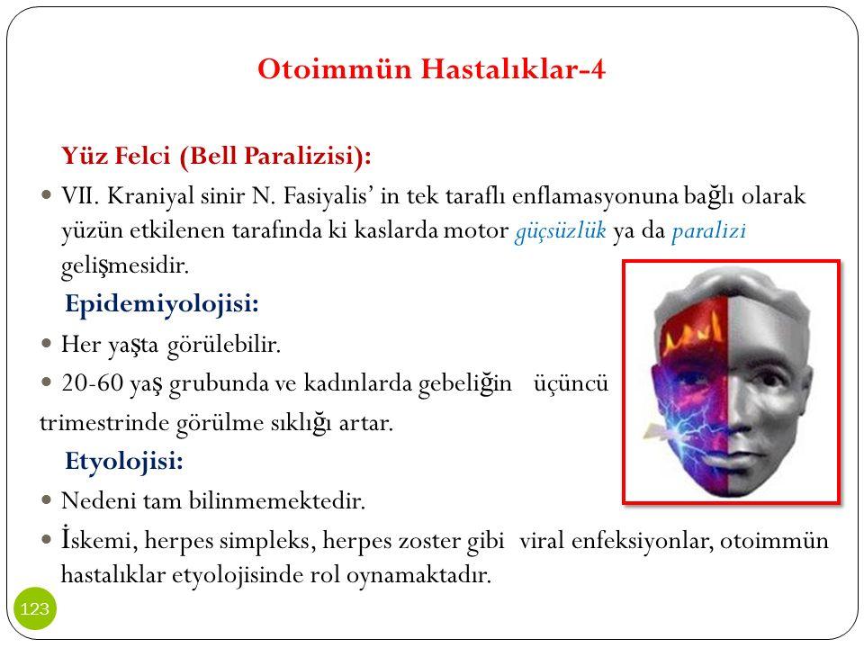 Otoimmün Hastalıklar-4 Yüz Felci (Bell Paralizisi): VII. Kraniyal sinir N. Fasiyalis' in tek taraflı enflamasyonuna ba ğ lı olarak yüzün etkilenen tar