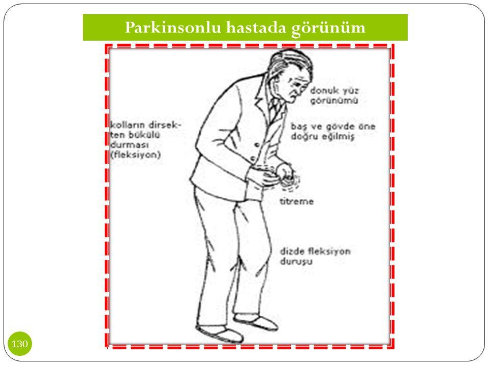 Parkinsonlu hastada görünüm 130
