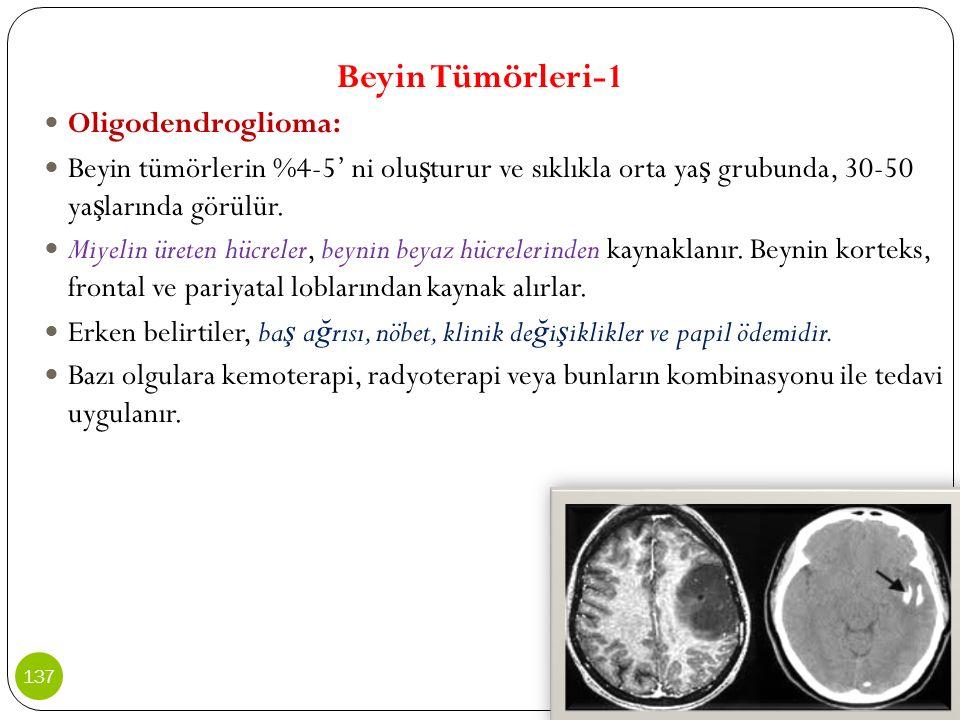 Beyin Tümörleri-1 Oligodendroglioma: Beyin tümörlerin %4-5' ni olu ş turur ve sıklıkla orta ya ş grubunda, 30-50 ya ş larında görülür. Miyelin üreten