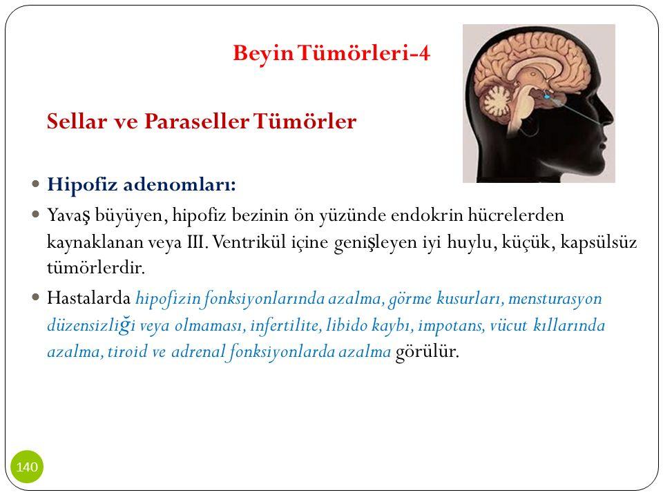 Beyin Tümörleri-4 Sellar ve Paraseller Tümörler Hipofiz adenomları: Yava ş büyüyen, hipofiz bezinin ön yüzünde endokrin hücrelerden kaynaklanan veya I