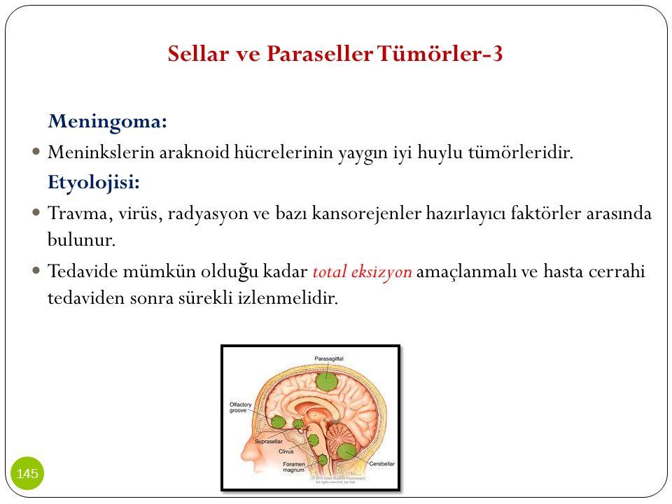 Sellar ve Paraseller Tümörler-3 Meningoma: Meninkslerin araknoid hücrelerinin yaygın iyi huylu tümörleridir. Etyolojisi: Travma, virüs, radyasyon ve b