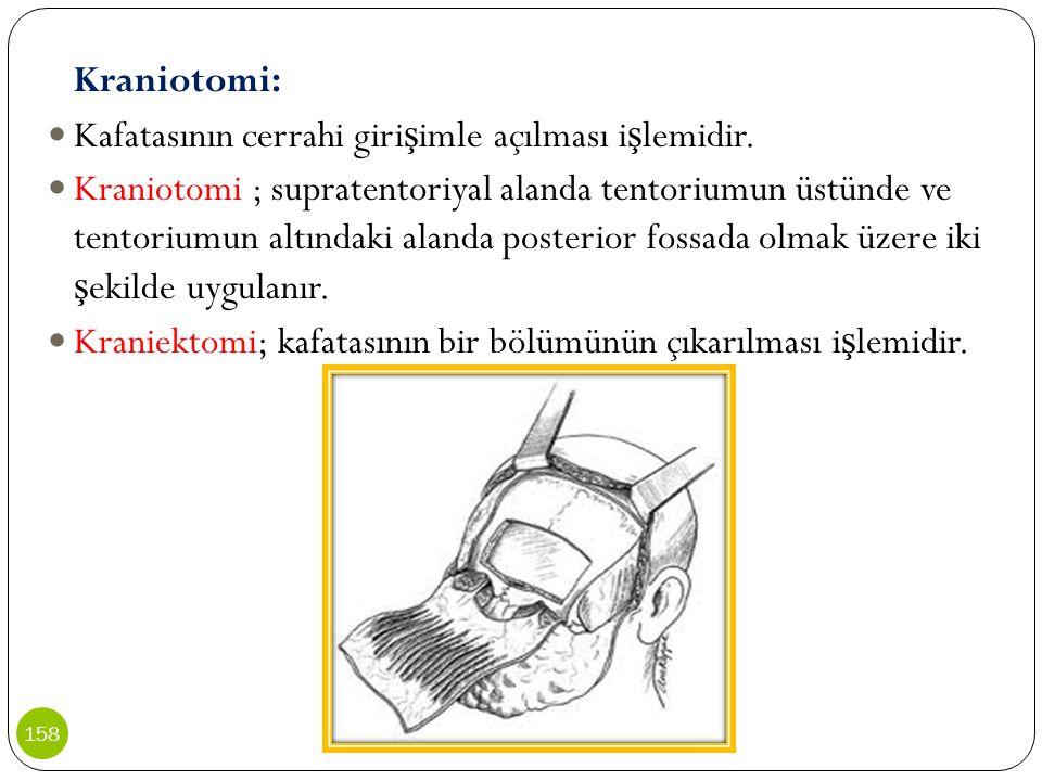 Kraniotomi: Kafatasının cerrahi giri ş imle açılması i ş lemidir. Kraniotomi ; supratentoriyal alanda tentoriumun üstünde ve tentoriumun altındaki ala