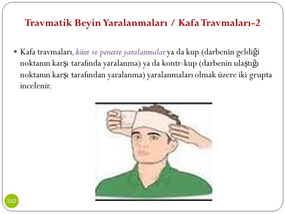 Travmatik Beyin Yaralanmaları / Kafa Travmaları-2 Kafa travmaları, künt ve penetre yaralanmalar ya da kup (darbenin geldi ğ i noktanın kar ş ı tarafın