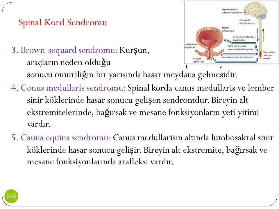 Spinal Kord Sendromu 3. Brown-sequard sendromu: Kur ş un, bıçak gibi araçların neden oldu ğ u penetran yaralanmalar sonucu omurili ğ in bir yarısında