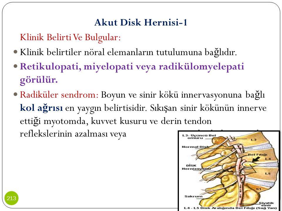 Akut Disk Hernisi-1 Klinik Belirti Ve Bulgular: Klinik belirtiler nöral elemanların tutulumuna ba ğ lıdır. Retikulopati, miyelopati veya radikülomyele