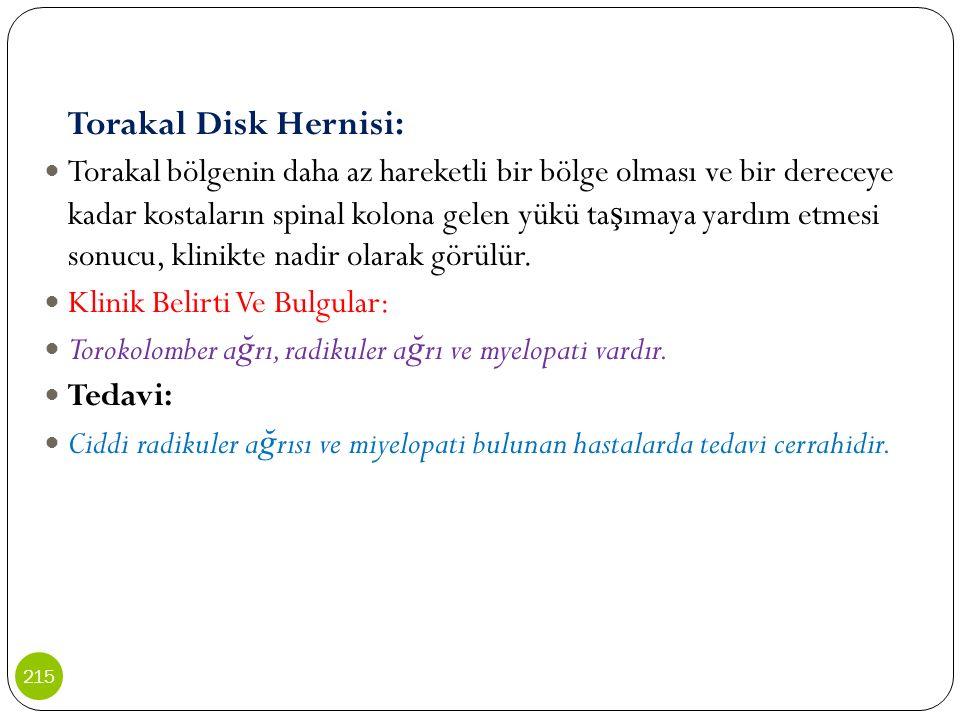 Torakal Disk Hernisi: Torakal bölgenin daha az hareketli bir bölge olması ve bir dereceye kadar kostaların spinal kolona gelen yükü ta ş ımaya yardım