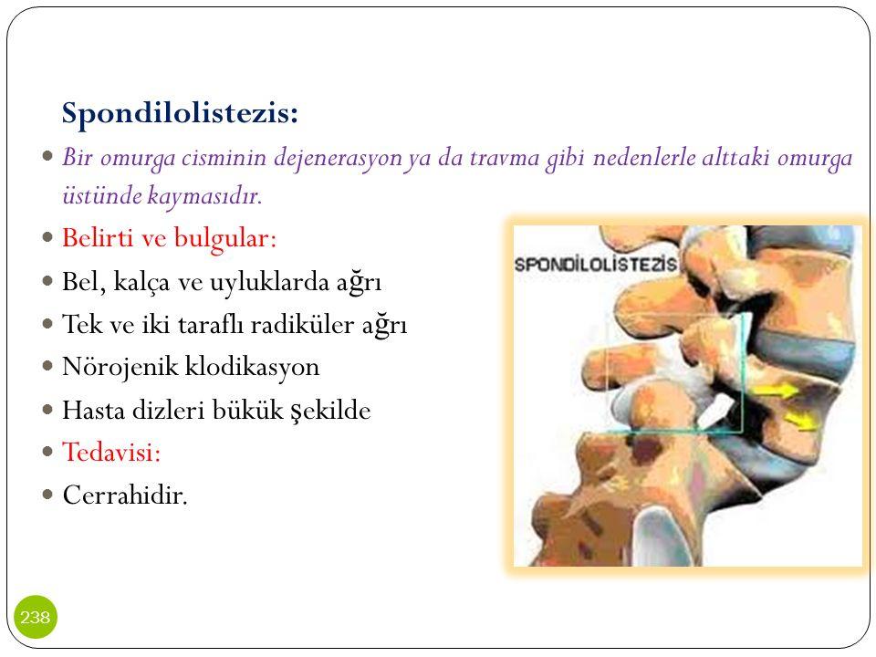 Spondilolistezis: Bir omurga cisminin dejenerasyon ya da travma gibi nedenlerle alttaki omurga üstünde kaymasıdır. Belirti ve bulgular: Bel, kalça ve