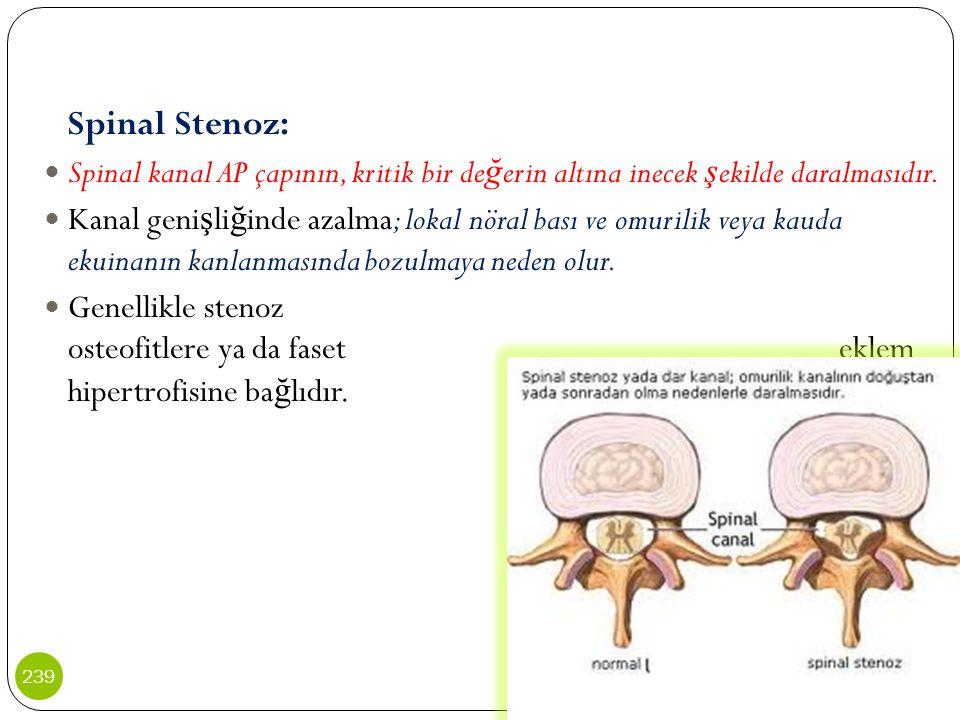 Spinal Stenoz: Spinal kanal AP çapının, kritik bir de ğ erin altına inecek ş ekilde daralmasıdır. Kanal geni ş li ğ inde azalma; lokal nöral bası ve o