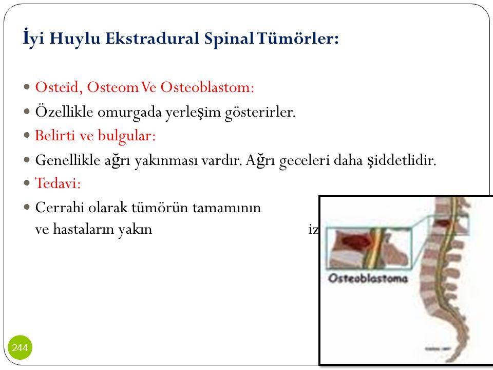 İ yi Huylu Ekstradural Spinal Tümörler: Osteid, Osteom Ve Osteoblastom: Özellikle omurgada yerle ş im gösterirler. Belirti ve bulgular: Genellikle a ğ