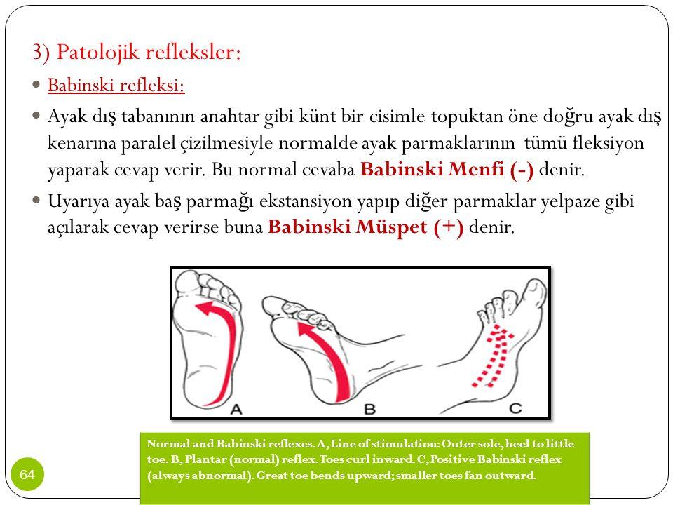 3) Patolojik refleksler: Babinski refleksi: Ayak dı ş tabanının anahtar gibi künt bir cisimle topuktan öne do ğ ru ayak dı ş kenarına paralel çizilmes