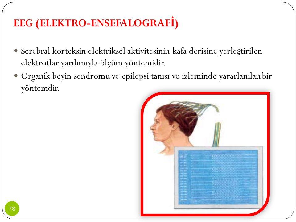 EEG (ELEKTRO-ENSEFALOGRAF İ ) Serebral korteksin elektriksel aktivitesinin kafa derisine yerle ş tirilen elektrotlar yardımıyla ölçüm yöntemidir. Orga