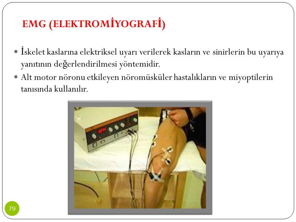 EMG (ELEKTROM İ YOGRAF İ ) İ skelet kaslarına elektriksel uyarı verilerek kasların ve sinirlerin bu uyarıya yanıtının de ğ erlendirilmesi yöntemidir.