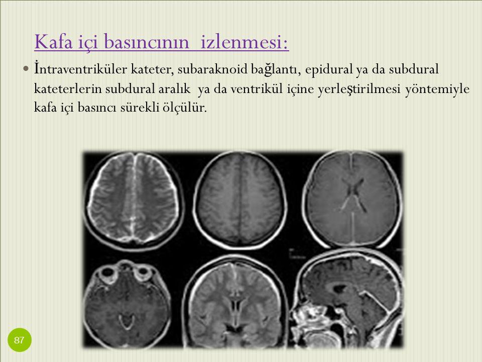 Kafa içi basıncının izlenmesi: İ ntraventriküler kateter, subaraknoid ba ğ lantı, epidural ya da subdural kateterlerin subdural aralık ya da ventrikül