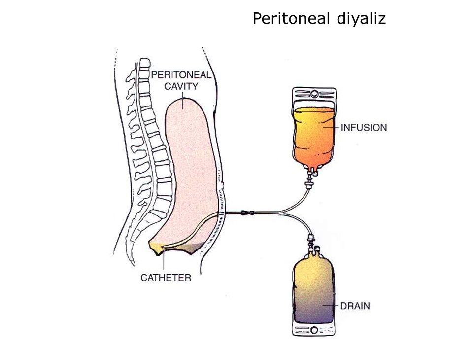 Peritoneal diyaliz
