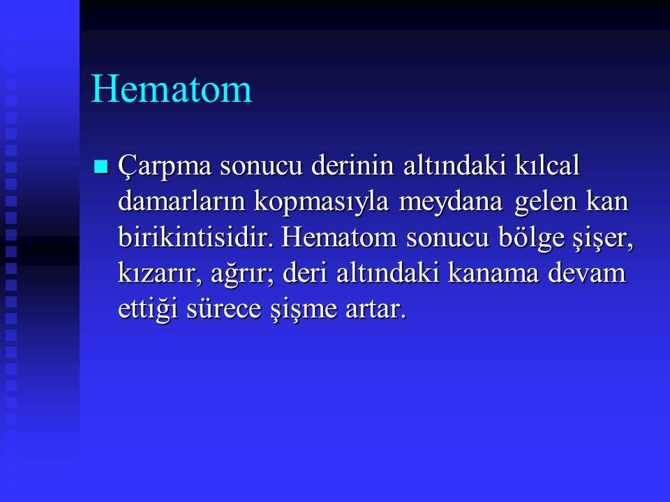 Hematom Çarpma sonucu derinin altındaki kılcal damarların kopmasıyla meydana gelen kan birikintisidir. Hematom sonucu bölge şişer, kızarır, ağrır; der