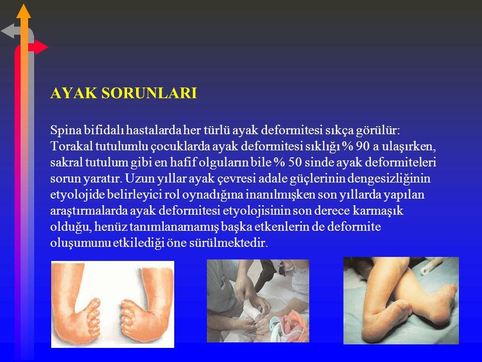 AYAK SORUNLARI Spina bifidalı hastalarda her türlü ayak deformitesi sıkça görülür: Torakal tutulumlu çocuklarda ayak deformitesi sıklığı % 90 a ulaşırken, sakral tutulum gibi en hafif olguların bile % 50 sinde ayak deformiteleri sorun yaratır.