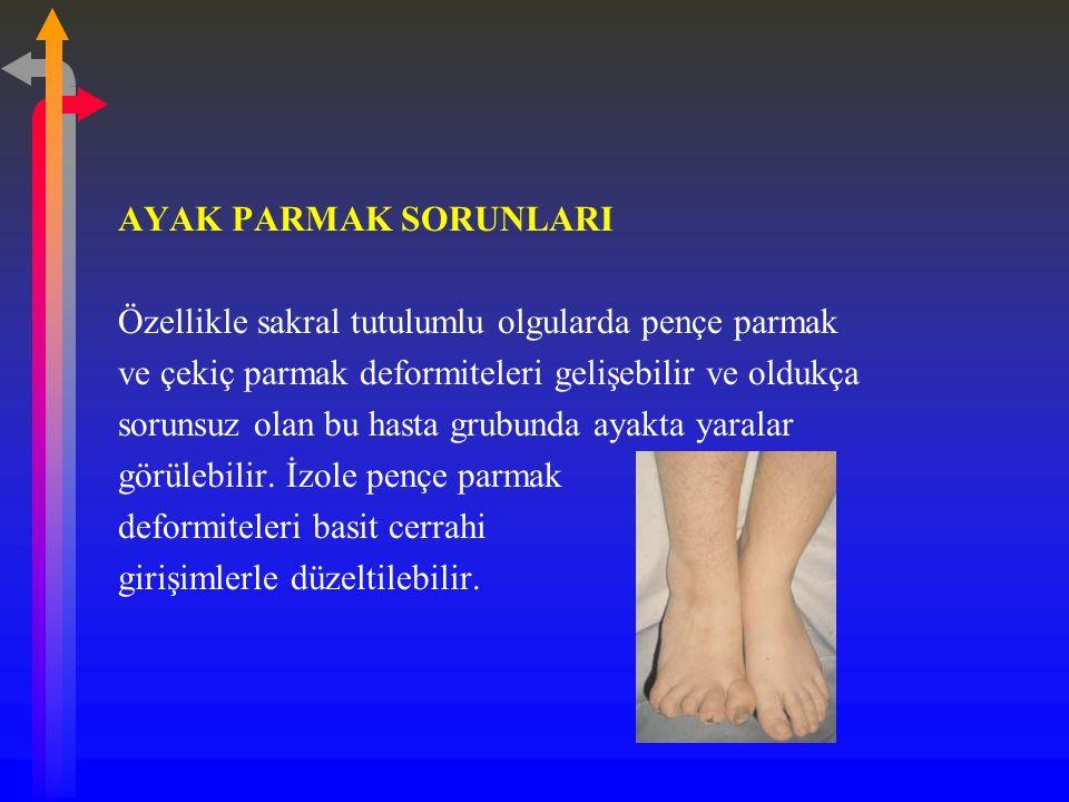 AYAK PARMAK SORUNLARI Özellikle sakral tutulumlu olgularda pençe parmak ve çekiç parmak deformiteleri gelişebilir ve oldukça sorunsuz olan bu hasta grubunda ayakta yaralar görülebilir.