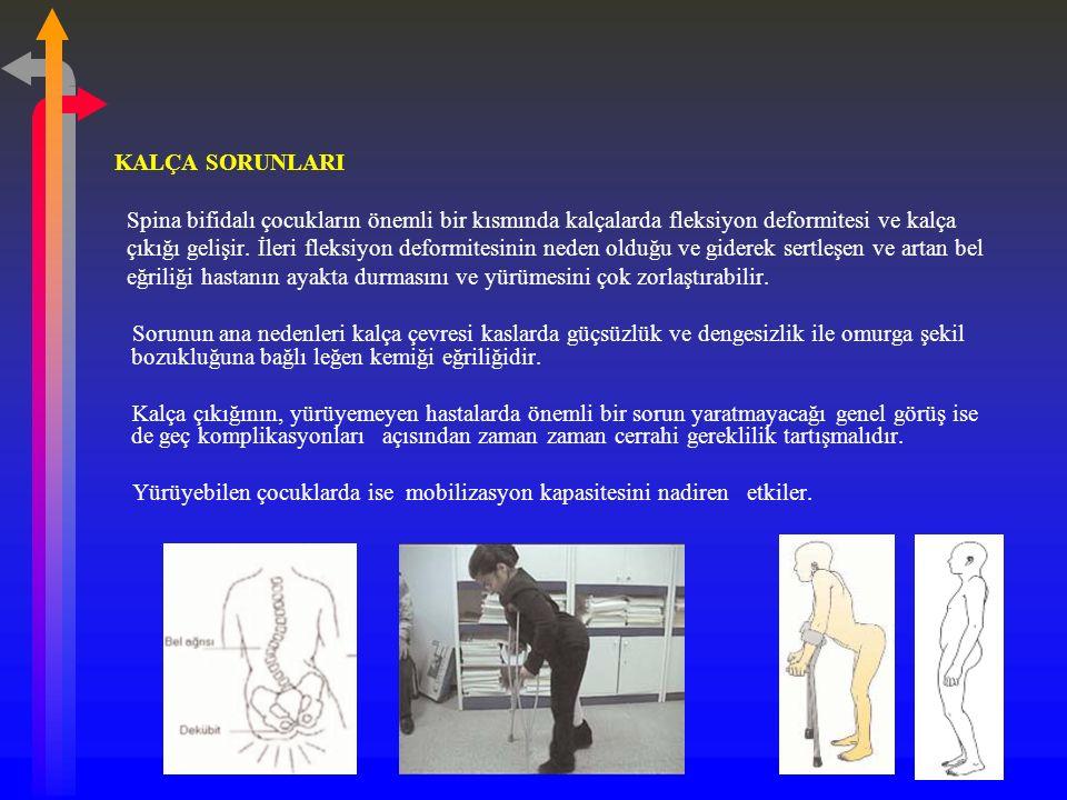 KALÇA SORUNLARI Spina bifidalı çocukların önemli bir kısmında kalçalarda fleksiyon deformitesi ve kalça çıkığı gelişir.