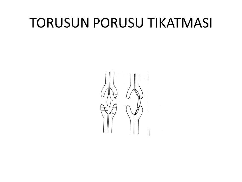 TORUSUN PORUSU TIKATMASI
